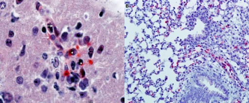 Immunohistochemical detection of oriential antigen. (A) Analysis performed in the brain of a C3H/HeN mouse infected i.v., with 2 × 105 FFU of Orientia tsutsugamushi 11 days earlier (original magnification 400×). Alkaline phosphatase signal from the secondary antibody produces a red precipitate visible in endothelial cells of a microvessel (arrows) and in adjacent mononuclear leukocytes (asterisks). The section is counterstained with hematoxylin and eosin. (B) Analysis of the lungs of the same animals (original magnification 100×) with the same alkaline phosphatase technique shows multiple foci of oriential antigen in the alveolar walls. Courtesy of Thomas Shelite.