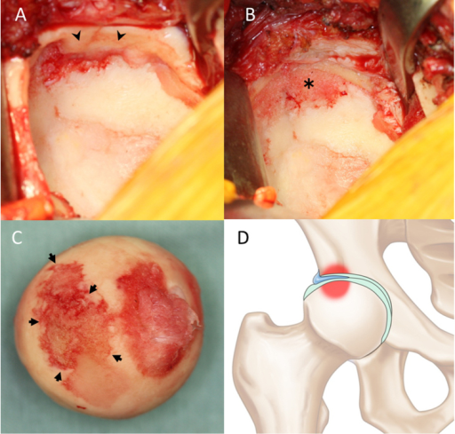 (A) During surgery, the anterosuperior labrum was found to be inverted into the articular space (arrowheads). (B) After resection of the inverted labrum (asterisk) and (C) resection of the femoral head, it was apparent that only the area of the articular cartilage in contact with the inverted labrum was damaged (arrows). (D) Illustration indicating how the inverted labrum affect articular cartilage and subchondral bone.