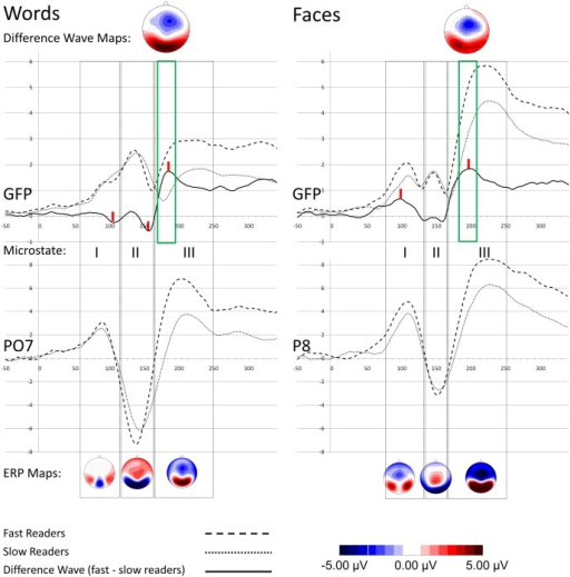 Grand average waveforms and scalp maps.The upper panel shows global field power (GFP) curves for words (left) and faces (right). ERP waveforms at selected electrode positions are shown in the lower panel. Grey squares indicate microstate boarders, red vertical dashes in the upper panel mark difference wave peaks, and the green squares indicate time window boarders where significant mean amplitude differences between reader groups were found. Maps in the upper panel show the scalp distribution of differences waves averaged over time points in the relevant time window. The maps below represent topographical maps at ERP peaks of the grand average computed across both reader groups.