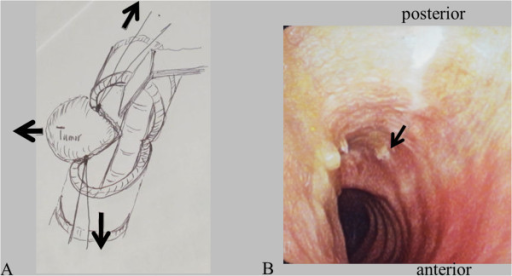 Surgical procedure and postoperative endotracheal finding. (A) Surgical procedure. (B) Endotracheal finding 3 months after the surgery. There is no granulation formation. Arrow indicates the left-hand end of the surgical scar on the membranous wall of the trachea.