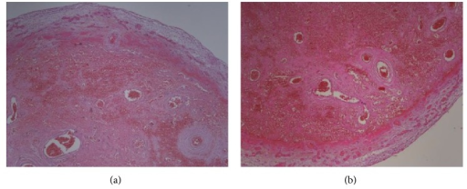 (a) Transmural necrosis and hemorrhage (H&E staining ×100 magnification). (b) Ischemic necrosis, congestion, and hemorrhage (H&E staining ×100 magnification).