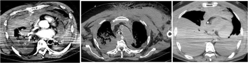 Computed tomography scans showing intra-thoracic, thoracic, and mediastinal bleeding, presumably caused by excessive chest compression, in the three patients in the present study who experienced fatal bleeding