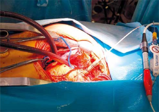 Impella device inserted through the tubing graft anastomosed to the ascending aorta