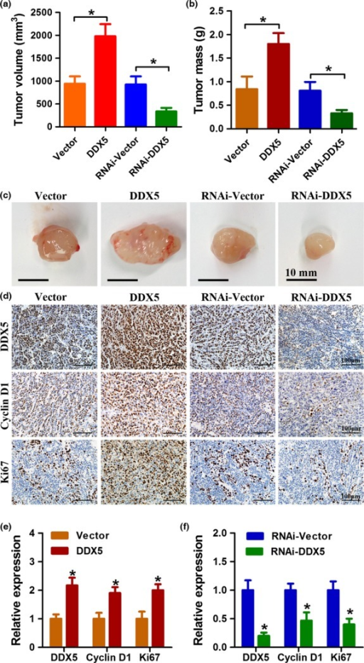 DDX5 promotes non-small-cell lung cancer cell growth in vivo. (a, b) H520 cells were stably infected with the indicated lentivirus and injected s.c. into BALB/c-nude mice. Four weeks after injection, xenografts were removed. Tumor volume and tumor weight were determined. (c) Representative images of xenografts from different groups. (d–f) Immunohistochemical analysis of the expression of DDX5, Ki67, and cyclin D1 in different groups of xenografts. *P < 0.05.