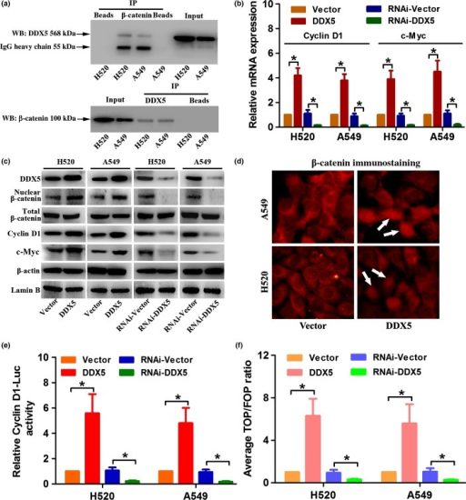 DDX5 promotes β-catenin nuclear accumulation and activates cyclin D1 and c-Myc transcription. (a) Co-immunoprecipitation (IP) analysis of DDX5 and β-catenin in H520 and A549 non-small-cell lung cancer (NSCLC) cells. β-catenin and DDX5 can be reciprocally co-immunoprecipitated by their antibodies. Whole cell lysate was probed for input. Bead lanes contain the protein G-conjugated Sepharose beads used during the immunoprecipitation without the protein input. WB, Western blot. (b) Real-time PCR analysis of the relative expression of cyclin D1 and c-Myc mRNA in NSCLC cells. (c) Western blot analysis of the protein expression of DDX5, (total or nuclear) β-catenin, cyclin D1, and c-Myc. (d) Immunofluorescence analysis of β-catenin in DDX5 or vector-infected NSCLC cells. White arrows indicate nuclear localization of β-catenin. (e, f) Indicated cells transfected with pGL3-cyclinD1 (firefly), TOPflash (TOP) or FOPflash (FOP), and pRL-TK (Renilla) plasmids were subjected to dual luciferase reporter assays 48 h after transfection. Reporter activity was normalized by Renilla luciferase activity. *P < 0.05.