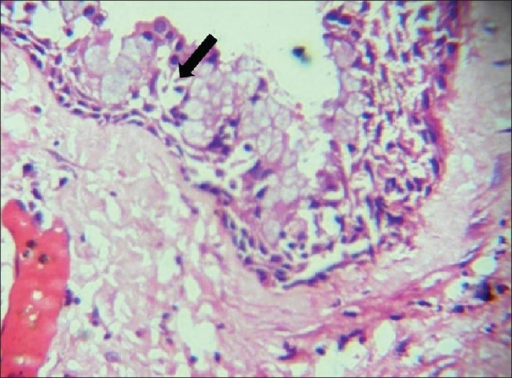 Photomicrograph showing numerous mucous cells and cubaoidal cells (arrow) at the surface microcystic spaces in the eptithelial lining (H and E, ×40)