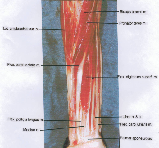lateral antebrachial cutaneous nerve; flexor carpi radialis muscle; flexor pollicis longus muscle; median nerve; biceps brachii muscle; pronator teres muscle; flexor digitorum superficialis muscle; ulnar nerve; ulnar artery; flexor carpi ulnaris muscle; palmar aponeurosis