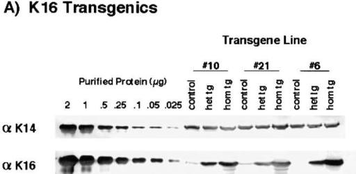 Determination of the level of transgene expression in the epidermis. Urea-soluble protein extracts were obtained from the  epidermides of 7-d-old control, heterozygous, and homozygous littermates from the various transgene lines. Equivalent amounts of total  urea-extractable protein (20 μg) were electrophoresed via SDS-PAGE and transferred to nitrocellulose for subsequent Western blot  analysis. (A) Western blot analysis of the K16 transgenics. The indicated amounts of purified human recombinant K14 and K16 were  used to establish a standard curve for densitometric analysis. The LL001 antibody (71) was used to detect K14 and the 1275 antibody  (82) to detect K16. (B) Western blot analysis of the K16-C14 chimera transgenics. The LL001 antibody was used to detect both mouse  K14 and the K16-C14 transgene protein. Their position of migration of each protein is indicated by the arrows on the right. Purified recombinant K16-C14 was used to determine the migration position of the transgene product. (C) The three No. 21 line samples were subjected to Western blot analysis using the K8.12 antibody (this antibody is known to react with at least K13, K15, and K16). No bands of  molecular weight ⪝40 kD were detected in any of the three samples. Note that a minor degradation product of the purified K16 (see D)  reacts with the antibody. The lower arrow indicates the bottom of the gel. (D) The same samples were subjected to SDS-PAGE and  stained with Coomassie blue. The are no significant protein products below the type I keratin cluster (⪝40 kD) and no significant differences in the total amount of keratin proteins among the three samples.