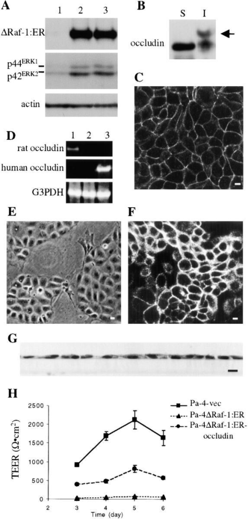 Expression of exogenous occludin induced the formation of functional epithelial cell TJs in Pa-4ΔRaf-1:ER cells. (A) Western blots using antibodies to human estrogen receptor (top), phosphorylated ERK1 and ERK2 (middle), or actin (bottom). Lanes 1, 2, and 3 represent Pa-4-vec, Pa-4ΔRaf-1:ER, Pa-4ΔRaf-1: ER-occludin, respectively. Similar results were seen in all eight Pa-4ΔRaf-1:ER-occludin clones. (B) Pa-4ΔRaf-1:ER-occludin lysates were immunoblotted with an antioccludin antibody. S, Triton X-100–soluble; I, Triton X-100–insoluble. Arrow indicates hyperphosphorylated occludin. (C) Immunofluorescence staining (Cy5) showing occludin was concentrated at the cell borders. (D) Total RNA was isolated from Pa-4-vec (lane 1), Pa-4ΔRaf-1:ER (lane 2), and Pa-4ΔRaf-1:ER-occludin (lane 3) cells. Reverse transcription–PCR was performed using primer sets specific for rat occludin, human occludin, or glyceraldehyde 3-phosphate dehydrogenase (G3PDH) (as control). (E) Pa-4ΔRaf-1:ER-occludin cells grown on plastic displayed similar phenotype to that of Pa-4-vec cells. (F) Rhodamine-phalloidin labeling of actin showed the reappearance of pericellular actin rings in Pa-4ΔRaf-1:ER-occludin cells. (G) Pa-4ΔRaf-1:ER-occludin cells cultured on semipermeable filters grew as monolayers. (H) Formation of functional epithelial TJs in Pa-4ΔRaf-1:ER-occludin cells. TEER of Pa-4-vec (square), Pa-4ΔRaf-1:ER (triangle), and Pa-4ΔRaf-1:ER-occludin (circle) cells grown on filters were measured using a chopstick voltmeter. Data represent the mean ± SEM of six filters from each cell type. Bars, 10 μm.