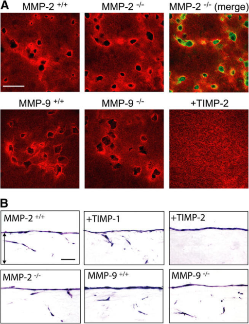 A nonessential role of MMP-2 and MMP-9 in regulating the collagenolytic and collagen-invasive activities of microvascular endothelial cells. (A) Littermate control, MMP-2−/−, or MMP-9−/− endothelial cells focally degrade a subjacent film (∼100 μg) of fluorescently labeled type I collagen after a 7-d culture period in the presence of VEGF–HGF and 5% autologous wild-type or knockout sera. Areas of collagenolytic activity expressed by MMP-2+/+, MMP-2−/−, MMP-9+/+, and MMP-9−/− correspond precisely with sites subjacent to overlying endothelial cells as shown in merged images of MMP-2–, phalloidin-stained cells (top, right). Collagenolytic activity by control littermate and  cells is completely blocked by 3 μg/ml TIMP-2 (bottom, right). Bar, 50 μm. (B) Invasion of 3-D collagen gels (2.2 mg/ml) by microvascular endothelial cells isolated from wild-type (MMP-2+/+/C57BL6 and MMP-9+/+/129SvEv), MMP-2–, or MMP-9– mice are shown after a 5-d incubation period with VEGF–HGF in the presence of 5% autologous serum. Endothelial cell invasion was insensitive to 3 μg/ml TIMP-1, but inhibited completely by 3 μg/ml TIMP-2. Bar, 50 μm. (C) The invasive activity of isolated wild-type, MMP-2−/−, or MMP-9−/− endothelial cells was quantified after a 5-d incubation period in the absence or presence of BB-94, TIMP-1, TIMP-2, or Ala-TIMP-2 mutant. Results are shown as the mean number of invading cells per high powered field (hpf) in two experiments.