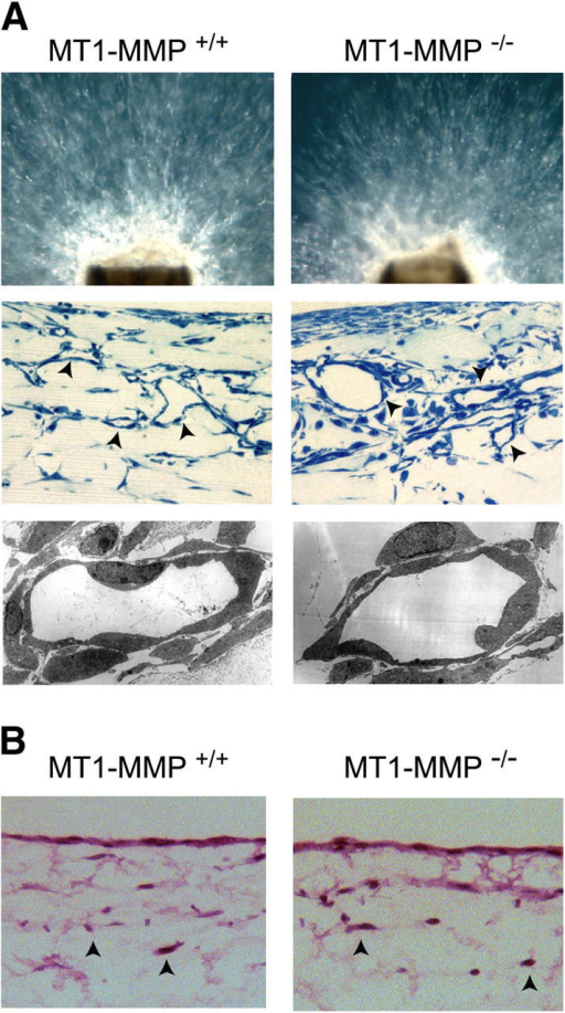 The fibrin-invasive activity of MT1-MMP– explants and endothelial cells. (A) Wild-type and MT1-MMP– explants display comparable neovessel outgrowth and tubulogenic activity when embedded in a 3-D gel of cross-linked fibrin (3.0 mg/ml) and cultured for 7 d with VEGF–HGF in the presence of 5% mouse serum as assessed by phase-contrast microscopy, in H&E–stained cross sections (representative vessels marked with arrowheads), or by TEM analysis (middle and bottom, respectively). (B) Isolated endothelial cells from wild-type or MT1-MMP– mice invade fibrin matrices (3.0 mg/ml) in comparable fashion in the course of a 5-d incubation period in the presence of VEGF–HGF and 20% FBS. Representative invading cells are marked with arrowheads. (C) Fibrin invasion by isolated endothelial cells from wild-type and MT1-MMP– mice are comparable, and inhibited by 1 μg/ml TIMP-2 but not 1 μg/ml TIMP-1 after a 5-d culture period under the conditions described above. Results are shown as the number of invading cells per hpf (mean ± 1 SD of 10 randomly chosen fields in two experiments).