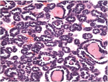 Metanephric adenoma. microacinar structures of basophilic cells with a nephroblastic appearance.