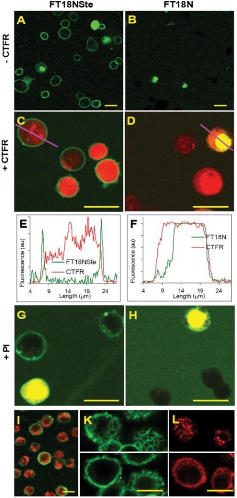 Fluorescence microscopy of Jurkat cells labeled with FT18NSte and FT18N. Cells were co-incubated with 0.2 μM FT18NSte (A, C) or FT18N (B, D) for 15 min at 37°C in PBS (green color). (C, D) Additionally, cells were labeled with 0.5 μM CTFR for 10 min at room temperature (red color). (E, F) Fluorescence profiles of single cells stained with CTFR and either FT18NSte (E) or FT18N (F); profiles were plotted via lines shown on panels C and D in violet color. (G, H) Cells were labeled with 5 µM PI for 5 min and with either FT18NSte (G) or FT18N (H). Dark spots on panel H represent unstained cells on the fluorescent background. Colocalization of green and red fluorescence is represented in the yellow color. (I) HL-60 cells were stained as in (C). (K) J774 cells were stained as in (A). (L) J774 cells were stained with 5 μM (Texas Red)-phosphatidylethanolamine. Photographs presented at panels K and L were taken at two focal plains: through the top (upper panel) and through the middle section of cells (bottom panel). The yellow marker size is 20 µm.