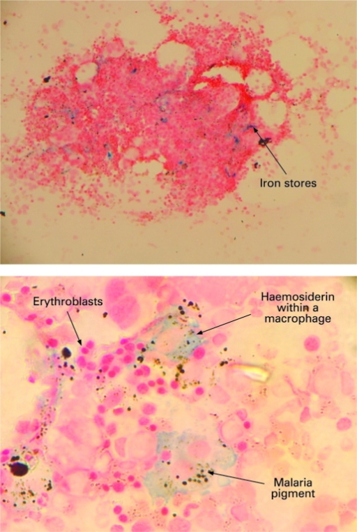 Bone marrow fragment showing iron deposits at ×400 magnification (top), and ×1000 magnification showing erythroblasts, iron and malaria pigment within macrophages (bottom).
