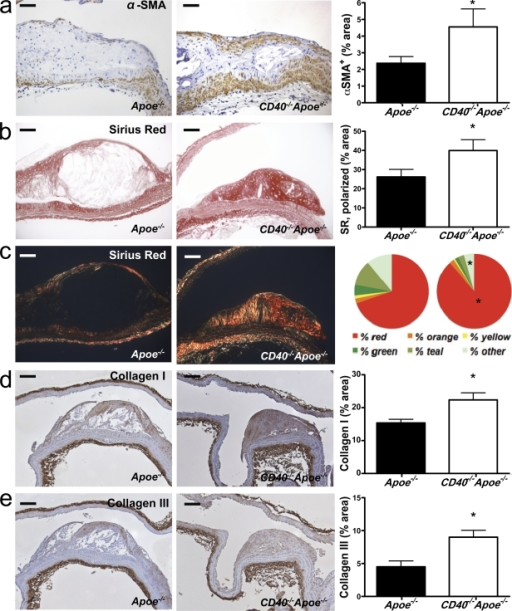 Deficiency of CD40 induces plaque fibrosis. Sections of the aortic arch and its main branch points (brachiocephalic artery, right and left subclavian artery, and right and left carotid artery) of Apoe−/− mice (n = 19) and CD40−/−Apoe−/− (n = 16) mice fed a normal chow diet for 26 wk were stained for α-SMA to detect the content of SMCs (a, representative sections on the left; bars, 50 µm), which was quantified as the percentage of α-SMA–positive plaque area (a, right). (b and c) Consecutive sections were stained with Sirius red to assess the content of collagen in the plaque by light (b) and polarized light (c) microscopy (representative sections on the left; bars, 50 µm). In addition, the content of collagen was expressed as the percentage of α-SMA–positive plaque area (b, right) and the color spectrum obtained using polarization microscopy was analyzed (c, right). (d and e) The content of collagen I (d) and collagen III (e) was assessed by immunohistochemistry (representative sections on the left; bars, 100 µm) and expressed as the percentage of positively stained plaque area (right). Error bars represent mean ± SEM. *, P < 0.05.
