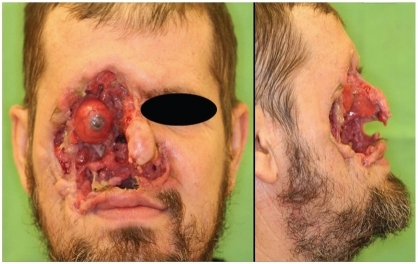 Case 1: A mutilating tumor on the right side of the patient's face.