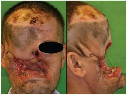 Case 1: The patient is tumor-free, but his face has not been reconstructed functionally or esthetically.