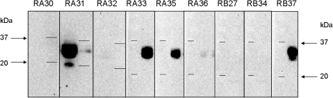 Immunoblot of ricin identified by several anti-ricin antibodies.2 µg of ricin was migrated in 15% SDS-PAGE and blotted onto PVDF membrane. Primary monoclonal antibodies obtained against the A or B chain were incubated for 1 h to bind to ricin. A secondary antibody HRP-conjugated anti-mouse IgG (diluted 1/2000) was added and proteins were detected after 10 min by chemiluminescence (ECL) using a VersaDoc imaging system (Bio-Rad). Two lanes are shown for each antibody, corresponding to the migration of ricin and of molecular weight markers (two lines, 37 and 20 kDa), respectively.