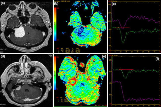 Two CPA tumors: T1 post-contrast (a, d) images, CBV maps (b, e) and time-intensity curves (c, f). a–c Typical schwannoma with low perfusion parameters (blue coloring) and the time-intensity curve returning to the baseline (violet curve). d–f Meningioma with intracanalicular enhancing part showing typical hyperperfusion (red coloring) and the time-intensity curve with no return to the baseline (violet curve)