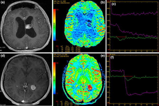 Two intraventricular tumors: T1 post-contrast (a, d) images, CBV maps (b, e) and time-intensity curves (c, f). a–c choroid plexus papilloma with low rCBV values on perfusion maps (blue and green coloring) and the time-intensity curves showing no return to the baseline (violet curves). d–f intraventricular meningioma with typical high rCBV values (red coloring) and the time-intensity curve with no return to the baseline (violet curve)