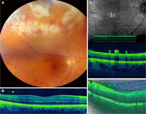 a Right eye with extensive retinal necrotic lesion with overlying hemorrhages. b SD-OCT image showing a normal macula. c, d SD-OCT demonstrating the posterior subhyaloid precipitates