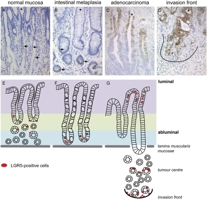 What are the stages of intestinal metaplasia?