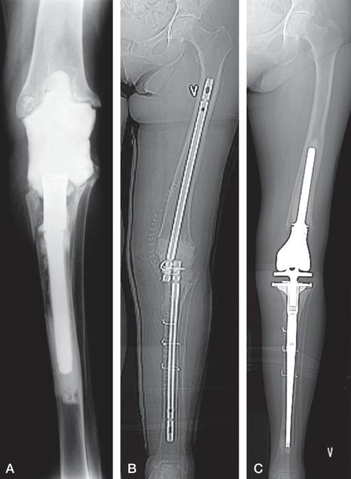 A 79-year-old woman with candida ostitis, who had the least bone loss on the femoral side, and the most bone loss on the tibial side. A. Status at referral with a cement spacer and the tibial stem still well-fixed to the bone. B. After revision, including removal of the tibial stem and insertion of an intramedullary spacer made by 2 retrograde nails connected with wires plus bone cement. C. X-ray after removal of the spacer and insertion of a tumor prosthesis (C).