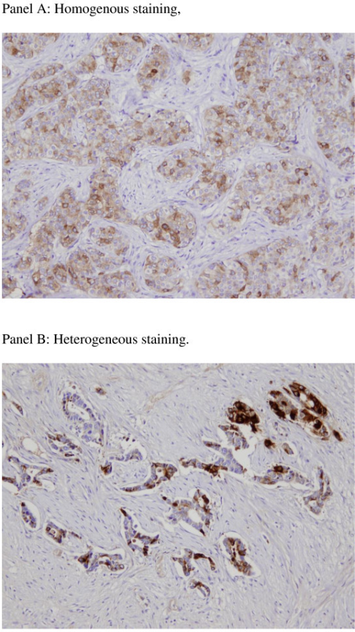 Illustrative figures of TIMP1 staining. Panel A: Homogenous staining. Panel B: Heterogeneous staining.