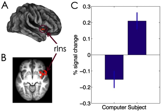 The effect of agency on choice-related activation.Stronger activation in the right insula is rendered onto a population-averaged surface atlas using multi-fiducial mapping [77], and is overlaid on the (B) axial slices of the group mean structural image. Activations were thresholded using cluster detection statistics, with a height threshold of z>2.3 and a cluster probability of P<0.05, corrected for whole-brain multiple comparisons. (C) Bar graph of the percentage signal change in the right insula during choice stage as a function of agency. Error bars denote within-subject error.