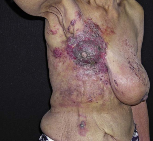 Right axillary lymphadenopathy in cachectic patient, associated with erythematousscaly plaque on the right breast infiltrated with abnormal volume