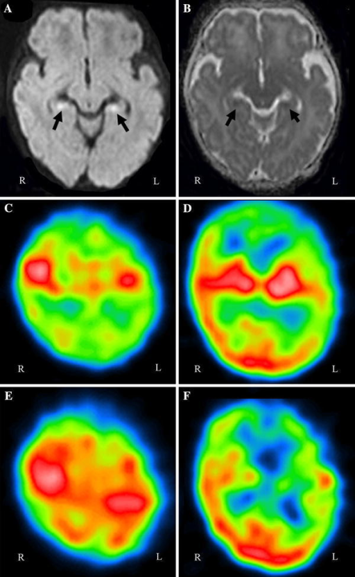 Magnetic resonance imaging (MRI) on day 6. Diffusion-weighted imaging (DWI) (a) revealed bilateral high-intensity regions in the hippocampus, and the apparent diffusion coefficient (ADC) (b) was low in the same regions. c–f99mTc- ethylcysteinate dimer (ECD) single-photon emission computed tomography (SPECT). Axial views through the parietal lobes (c, e) and through the cerebral cortex, white matter, and basal ganglia (d, f). Upper row (c, d): At 18 days after onset (hospital day 18), SPECT showed hypoperfusion of the bilateral frontal and parietal lobes and the unilateral temporal lobe with some predominance on the left side. Lower row (e, f): At 3 months after onset, hypoperfusion of the bilateral parietal lobes on SPECT had improved, but hypoperfusion of the unilateral temporal lobe with some predominance on the left side was exacerbated