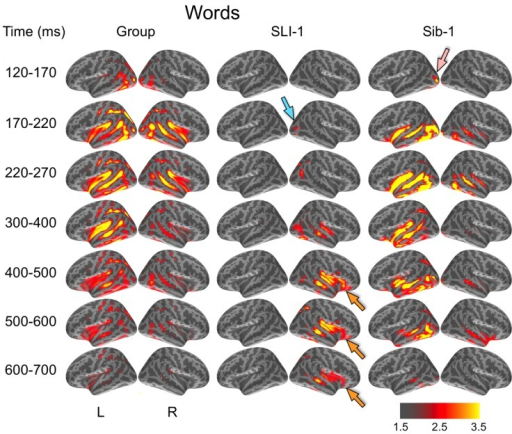 Group and single-subject dSPMs of mean cortical activity during the semantic processing of words. In comparison to the functional organization of both the control group and sibling, SLI-1 showed strongly right-lateralized activity, from early sensoriperceptual to later cognitive stages. His early lateral occipital response was on the opposite side and somewhat delayed in time (blue arrow) in relation to his sister (pink arrow). During latencies typically associated with semantic encoding, he showed sustained activity within right temporal, perisylvian, and frontal opercular regions (orange arrows). Color scale represents square root of F values, which are a measure of signal-to-noise.