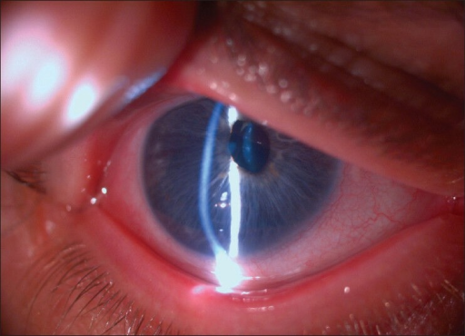 Slit-lamp photograph of the right eye shows inferior steepening with a clear zone between limbus and the steep band