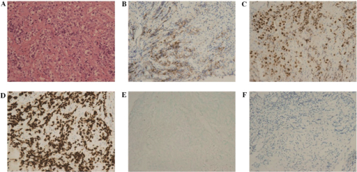 Immunohistochemical analysis of neoplastic cells (A) stained with hematoxylin and eosin, which were positive for (B) cluster of differentiation 138, (C) melanoma ubiquitous mutated-1, (D) Ki-67, (E) Epstein-Barr virus-encoded small RNA and (F) human herpesvirus 8.