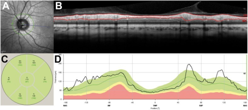 A–D Measurement of retinal nerve fiber layer (RNFL) thickness, using a circular B-scan placed around the optic disc.A Confocal scanning laser ophthalmoscopy infrared image shows optic disc with circular scan (diameter: 3.5 mm). B Corresponding spectral domain optical coherence tomography scan. Red marks delineate automatically borders of RNFL layer. C Presentation of RNFL thickness values for individual sectors and global measurement. D Individual measurement graphically compared to a healthy population.