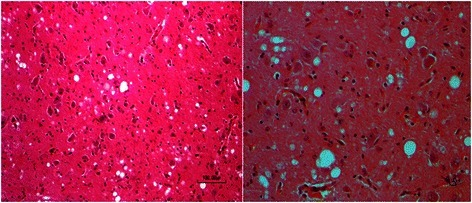 Photomicrographs indicate the serial sections of the brain from an ovine fetus. There are many foci of mild to severe microcavitation. H&E 200x, and 600x. Bar =100, and10 μm.