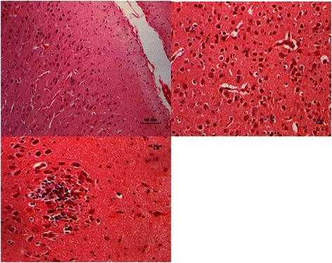 Micrograph of the superficial cerebral cortex: Slides are from an aborted fetus with nonsuppurative encephalitis. Note the severe acute neuronal necrosis acute with nuclear pyknosis. Photomicrograph shows a focal gliosis associated with eosinophilicneuronal necrosis. H&E 200x, 400x and 600x. Bar = 100, 10 μm and10 μm, respectively.