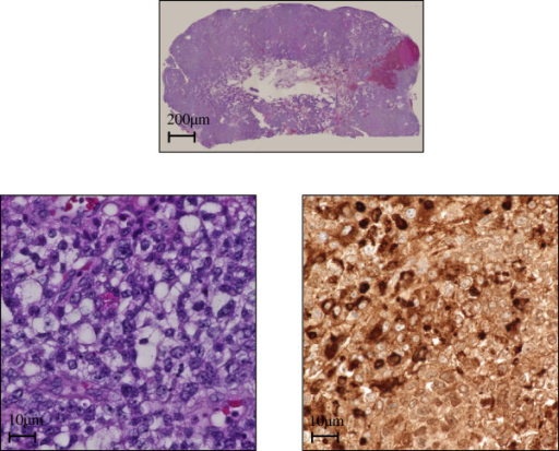 Hematoxylin and eosin staining of brain metastasis. Above, low magnification image. Below, high magnifications of brain tumor. Hematoxylin and eosin staining and positive immune-staining for alpha-fetoprotein. The final pathological diagnosis was a yolk sac tumor.
