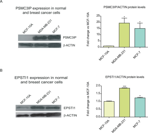 Expression of PSMC3IP and EPSTI1 in normal and breast cancer cell lines.We inspected the endogenous expression of PSMC3IP (A) and EPSTI1 (B) in two types of breast cancer cell lines, MDA-MB-231 and MCF-7, as compared to a normal breast epithelial cell line, MCF-10A. Estimated protein levels based on densitometry (right) of the immunoblots (left) show a PSMC3IP 19- and 15-fold expression in MDA-MB-231 and MCF-7 cells, while EPSTI1 only shows 1.9- and 1.3-fold in each cell line, respectively. Protein levels were normalized based on the loading control protein β-actin. (*P <0.05, **P<0.01, ***P <0.001 vs MCF-10A cells).