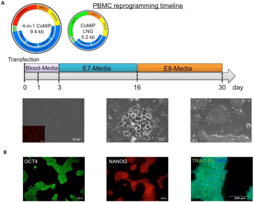 Human peripheral blood mononuclear cells (PBMCs) were successfully reprogrammed using the 4-in-1 CoMiP vector in combination with a Yamanaka vector co-expressing human c-Myc, LIN28, and NANOG.A single transfection of 2 × 106 PBMCs and subsequent cultivation in blood media and chemical defined media was sufficient to generate multiple iPSC colonies. Representative brightfield and fluorescent pictures exemplified the expected outcome of normal PBMC reprogramming experiment. A robust transfection efficiency (tdTomato expression in PBMCs observed 2 days after the electroporation) and optimal culture condition supporting the initial proliferation of the PBMCs are crucial for a successful experimental outcome.