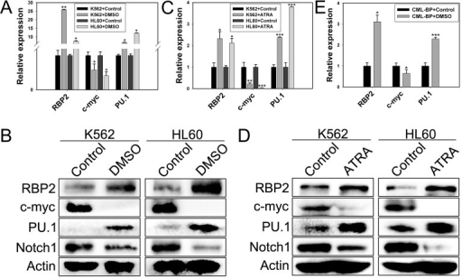 RBP2 induces cell differentiation(A) The mRNA expression of RBP2 in differentiated K562 and HL60 leukemia cells induced by DMSO. Quantitative RT-PCR (qRT-PCR) analysis of the mRNA levels of RBP2, c-myc, and PU.1 and loading control β-actin. Data are mean ± SEM of 3 independent experiments. (B) Western blot analysis of RBP2, c-myc, PU.1 and Notch1 protein level after treatment with DMSO. β-actin was a loading control. (C) qRT-PCR analysis of RBP2, c-myc, and PU.1 mRNA expression and the loading control β-actin in differentiated cells induced by ATRA. Data are mean ± SEM of 3 independent experiments. (D) Western blot analysis of RBP2, c-myc, PU.1 and Notch1 protein level after treatment with ATRA. β-actin was a loading control. (E) The mRNA expression of RBP2, c-myc, and PU.1 in differentiated primary cells induced by DMSO. The results are from 3 independent experiments. *P< 0.05, **P< 0.01, ***P< 0.001.