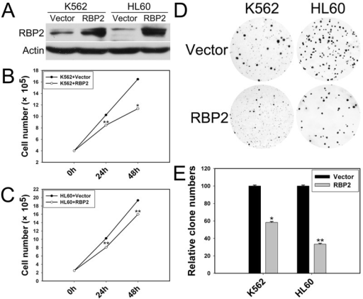 RBP2 inhibits the cell proliferation(A) Western blot analysis of protein level of RBP2 with RBP2 expression plasmid. β-actin was a loading control. (B, C) Proliferation of K562 and HL60 cells after transfection with RBP2 expression plasmid. (D, E) Foci formation of K562 and HL60 cells after transfection with RBP2 expression plasmid. The results are from 3 independent experiments. *P< 0.05, **P< 0.01.