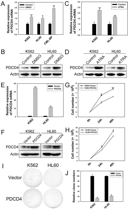 PDCD4 promotes cell differentiation and inhibits proliferationqRT-PCR and western blot analysis of the mRNA and protein levels of PDCD4 in (A, B) differentiated cells induced by DMSO and (C, D) induced by ATRA. (E) qRT-PCR analysis of the mRNA expression of PDCD4 with PDCD4 expression plasmid transfection. Data are mean ± SEM of 3 independent experiments. (F) Western blot analysis of the protein level of PDCD4 with PDCD4 expression plasmid transfection. β-actin was a loading control. (G, H) Cell proliferation assay of K562 and HL60 cells with PDCD4 expression plasmid transfection after 24 and 48 h. (I, J) Colony-formation assay of K562 and HL60 cells with PDCD4 expression plasmid transfection at 48 h. The results are from 3 independent experiments. *P< 0.05, **P< 0.01.