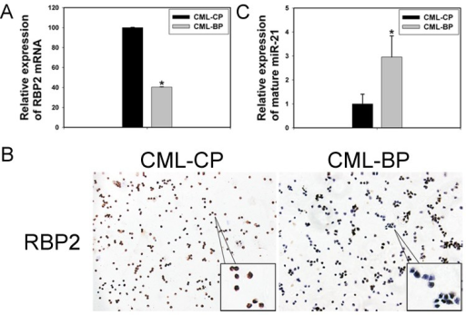 The expression of RBP2 and miR-21 in 26 patients with chronic myeloid leukemia in the chronic phase (CML-CP) and in 18 with blastic phase (CML-BP)(A, B) qRT-PCR and IHC analysis of RBP2 mRNA and protein levels. Data are mean ± SEM. (C) qRT-PCR analysis of the relative expression of mature miR-21 in CML-CP patients and CML-BP patients. Human CML-CP and -BP cells were from bone marrow of patients. Data are mean ± SEM. The results were confirmed by 3 independent experiments. *P< 0.05.