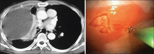 Left panel - CECT examination of the thorax in a patient with rheumatoid arthritis demonstrating a large loculated right pleural effusion. Right panel: Thoracoscopic appearance of a large area of plaque like erythema over the visualized parietal pleura from which pleural biopsy is being obtained. Histopathological examination of pleural biosy demonstrated non specific chronic inflammation