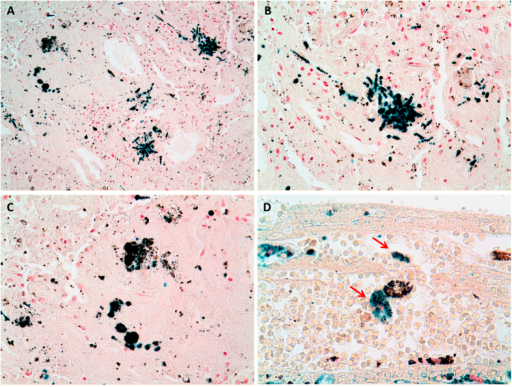 Histological images of asbestosis and anthracosis.Panel A, B, C and D are micrographs from the histological sections used in the study, coloured with Perls' staining. Panel A (20x) shows asbestos bodies and anthracotic material embedded within asbestosis tissue. Panel B (40x), asbestos bodies strongly Perls' positive (higher magnification of Panel A). Panel C (40x), carbonaceous particles in a patient with anthracosis (higher magnification of Panel A). Panel D, Perls' signal in proximity of anthracosis in a patient unexposed to asbestos.