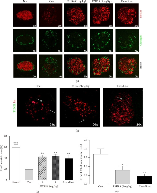 Chronic treatment with E2HSA normalized islet morphology, increased β-cell area, and inhibited β-cell apoptosis in spontaneous type 2 diabetes db/db mice. (a) Immunofluorescence double staining with anti-insulin and anti-glucagon antibodies on pancreatic sections. (b) TUNEL assay on β-cells costained with anti-insulin antibodies. Representative images are shown. (c) Total β-cell area as percentage of total islet areas (n = 5). (d) Percentage of TUNEL positive β-cells in insulin positive cells (n = 3 per group). Data are expressed as mean ± S.E.M. ∗P < 0.05 and ∗∗P < 0.01 versus Con.