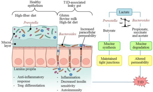 Diet and microbiota associated mechanisms in autoimmunity and type 1 diabetes (T1D) development.