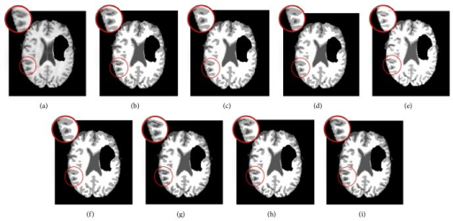 Segmentation results on the Brats2 image. (a) Original image. (b) GKFCM1 results. (c) GKFCM2 results. (d) FLICM results. (e) KWFLICM results. (f) MICO results. (g) ARKFCM1 results. (h) ARKFCM2 results. (i) ARKFCMw results.