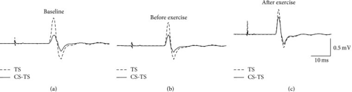 CBI in a single participant at (a) baseline, (b) before exercise, and (c) after exercise. MEP waveforms are averaged from 10 MEPs. Dashed waveforms show MEPs when the TS is delivered alone. Solid line waveforms show MEP waveforms when the TS was preceded by a CS delivered over the cerebellum. For this individual, the CS was delivered at RMT and preceded the TS by 7 ms. TS: test stimulus; CS: conditioning stimulus.